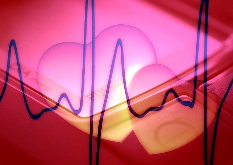 foto cc0 aa puls frequenz w